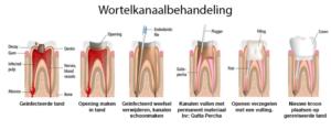 Een diagram van een wortelkanaalbehandeling